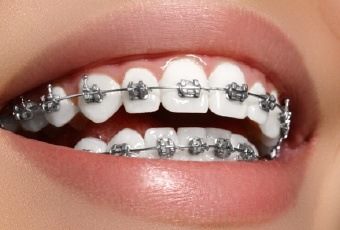 braces close-up