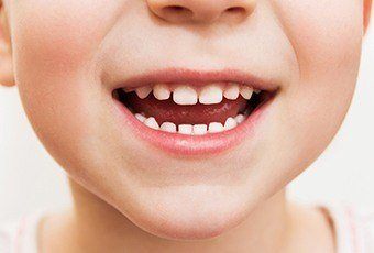 Closeup of child with healthy teeth