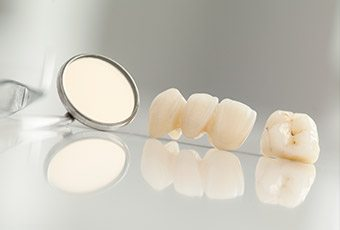 Custom dental crown and fixed bridge