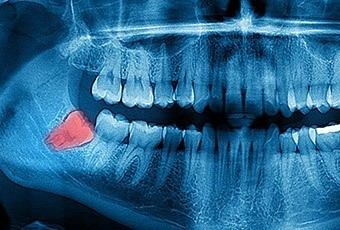 X-ray with wisdom tooth highlighted
