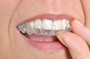 Your Ripon orthodontist creates straight smiles and healthy mouths.
