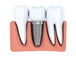 Learn more about how Oshkosh dental implants can restore your smile and your confidence.