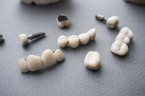 Dental restorations on a table.
