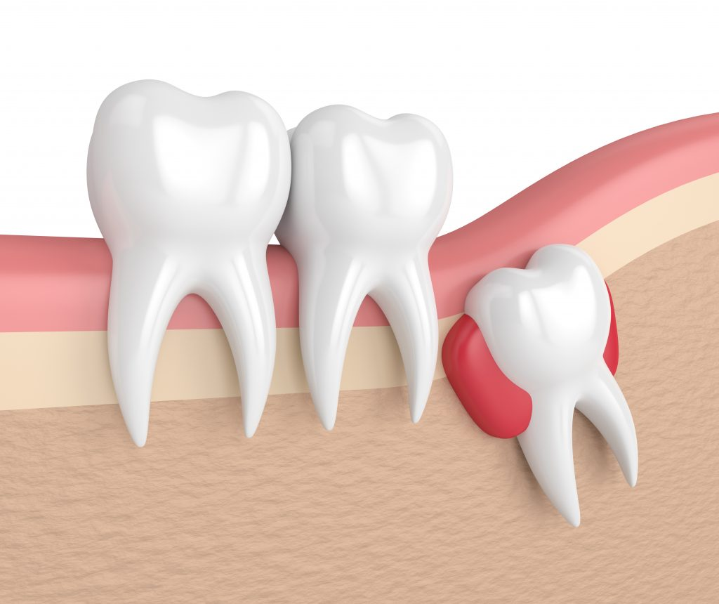 3D model of an impacted wisdom tooth