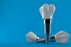 a computer illustration of dental implants against a blue background