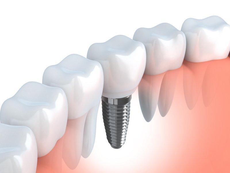 Illustration of a dental implant between natural teeth