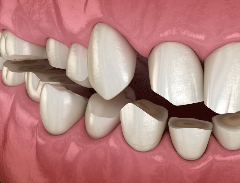 Model of mouth with eroded teeth